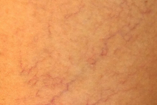 Aranas-vasculares-pequenas-766x1024-766x1024