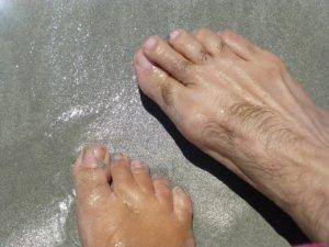 Onimicosis: Infección en las uñas de los pies