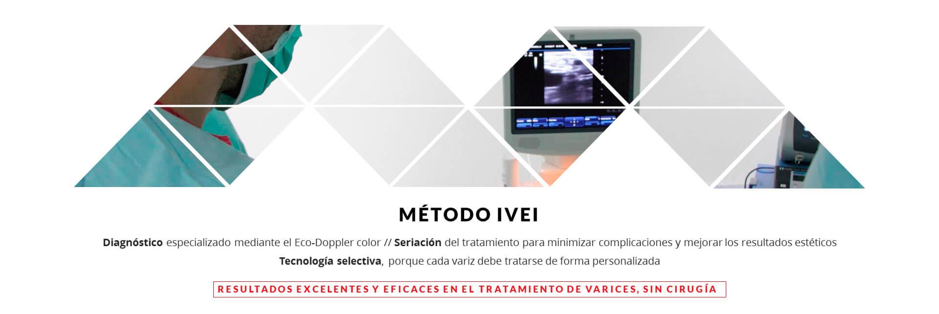 Metodo IVEI elminar varices